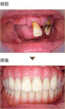 上下の義歯を固定性にしたい