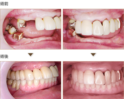 上顎はインプラント固定性、下顎はインプラントに磁性アタッチメントを用いた取り外し式義歯