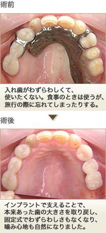 部分入れ歯からインプラント