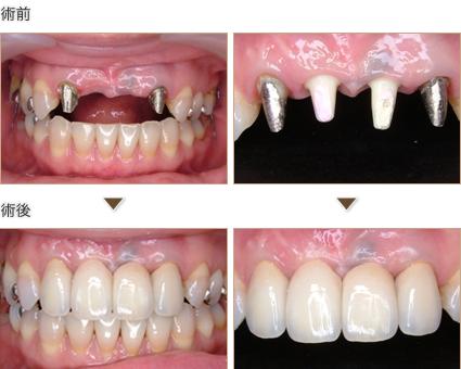 前歯2本をインプラント治療