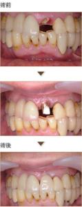 前歯1本抜歯後インプラントにて治療