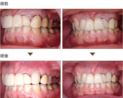 左上犬歯を抜歯即時インプラントで治療