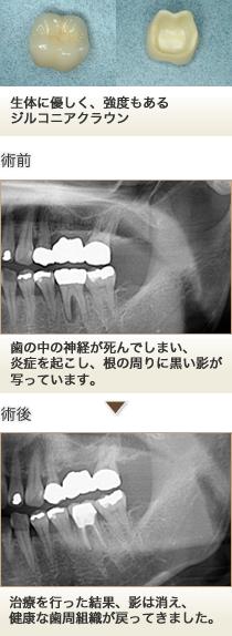 左下第一大臼歯の根管治療