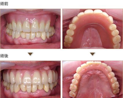 総入れ歯からインプラント