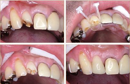 前歯の小さな虫歯