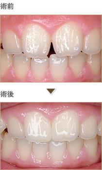 前歯の隙間にコンポジットレジン