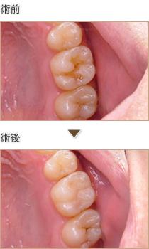奥歯の小さな虫歯にCR