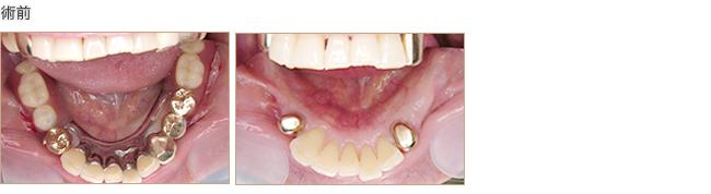 下顎の義歯の不快感をなくしたい